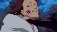 Monspeet get his neck slashed
