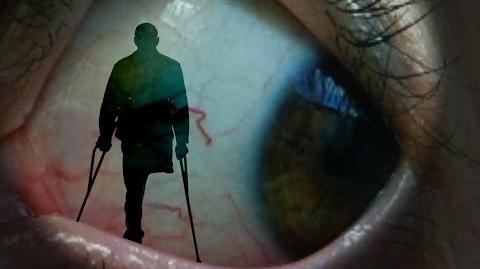 """""""Evil Eyes"""" amputee horror Creepypasta"""