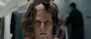 Lex Become Bald2