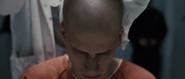 Lex Become Bald6