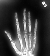 Nd96's fractured hand-1-