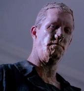 Band-Aid Nose Man