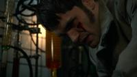 5x22 Mr Hyde sang blessure visage réveil laboratoire