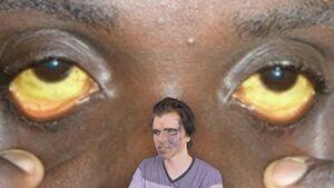 Black People Yellow Eyes