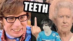 British teeth Onision