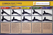 Common Foot Types Poster 2018