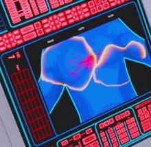 Sonic defibrillation