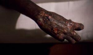 Jim goose's burnt body