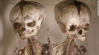 Esqueleto siameses