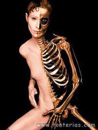 Esqueleto metálico