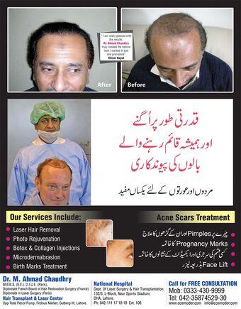 Hair Transplant Cost In Pakistan Pakistan Fandom