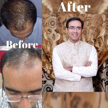 Hairtransplant in lahore