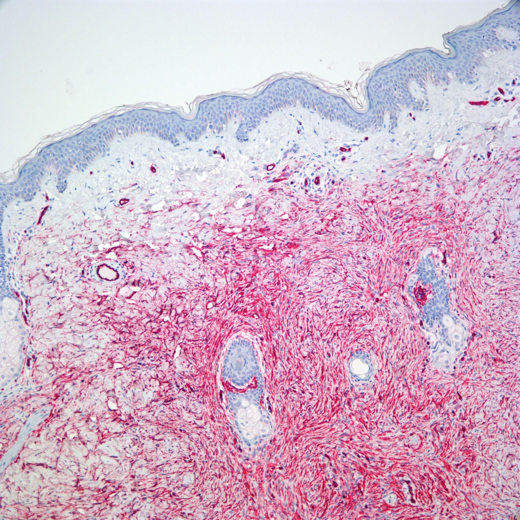 Dermatopathology Fellowship Directory   Pathology Resident
