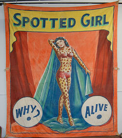 Spottedgirl L