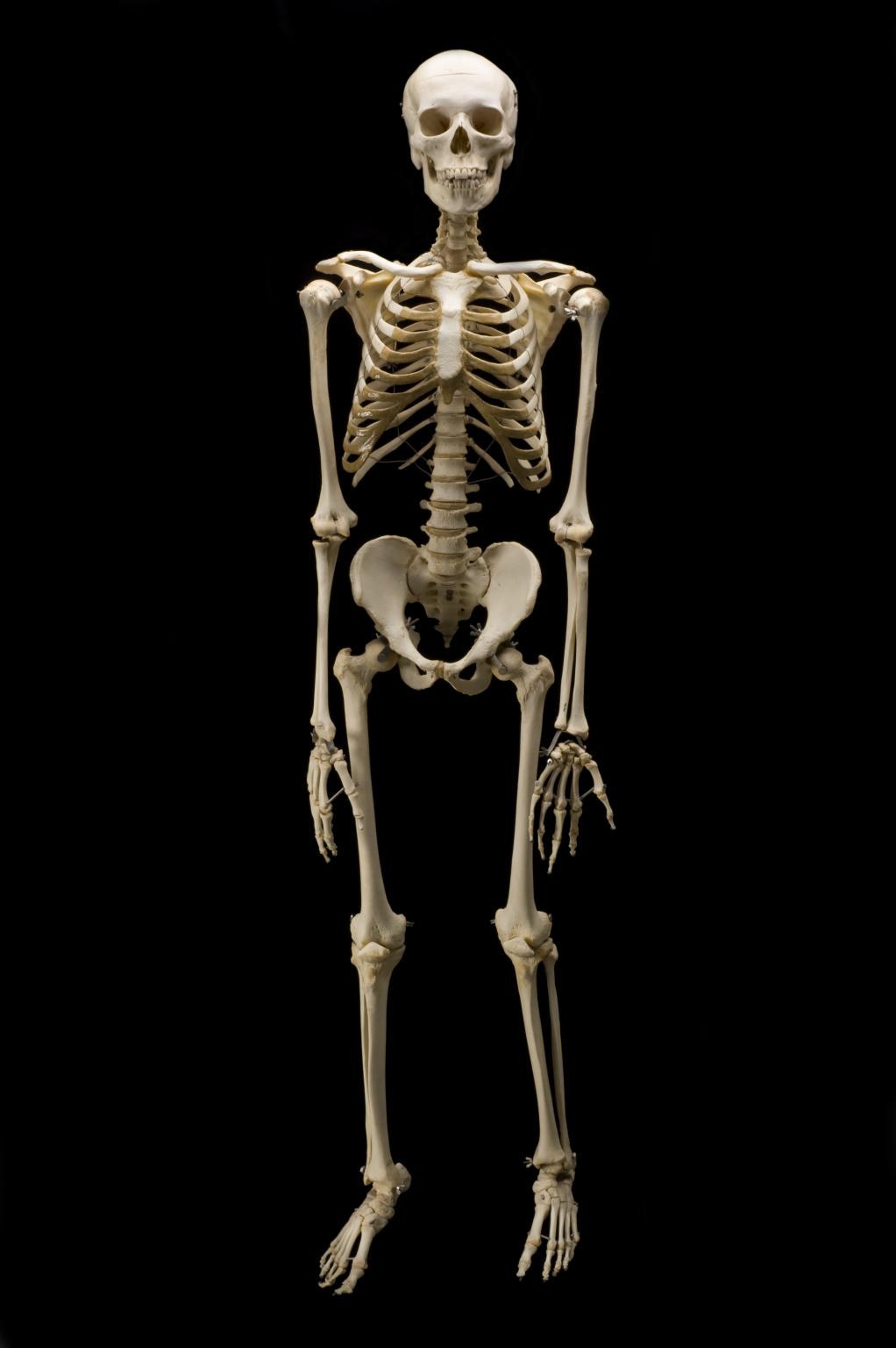 Image Skeletong Phobia Wiki Fandom Powered By Wikia