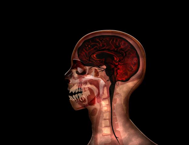 File:MRI stage05@2x.png