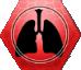 Stn Pulmonary Oedema