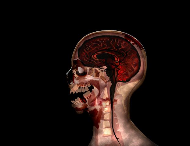 File:MRI stage06@2x.png