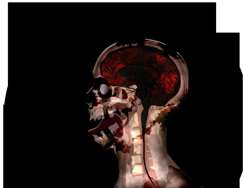 MRI stage07@2x