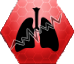 Stn Pulmonary Fibrosis