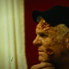 An infected patient.