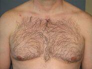 Shirt - Hair on the chest