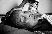 Cambodia AIDS Victim