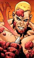 Tim Scab (Marvel Comics)