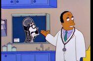 Homer Thick Skull