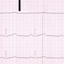 Cardiac neurosis wikipedia