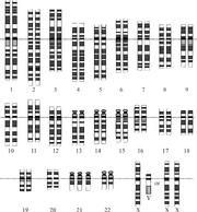 Down Syndrome Karyotype