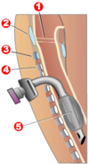 Tracheotomy neck profile