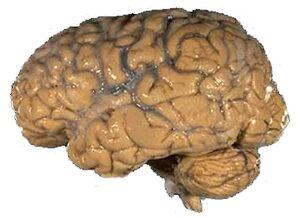 Human brain psychology wiki fandom powered by wikia human brain nih ccuart Gallery