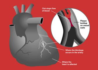 Myocardial infarctions | Psychology Wiki | FANDOM powered by