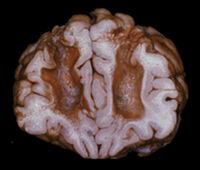 Leucotomy