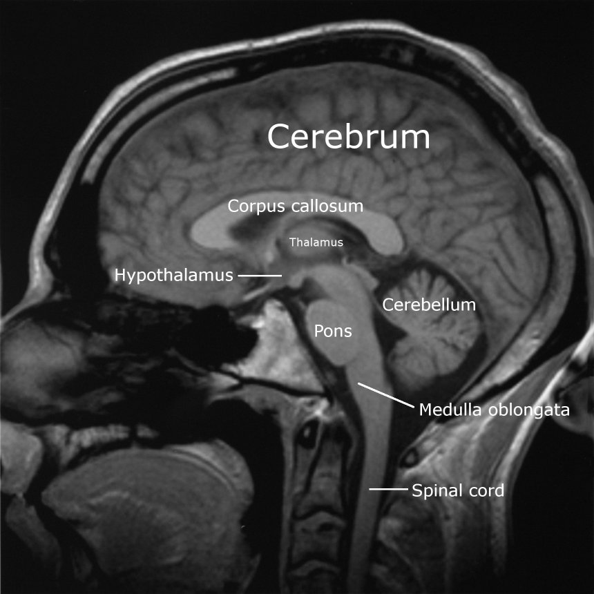 Human brain psychology wiki fandom powered by wikia labeledbrain english sagittal slice from a mri scan of a human brain ccuart Choice Image
