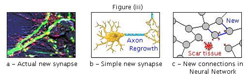 Brain repair figure iii