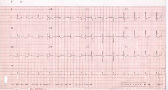 Electrocardiography | Psychology Wiki | FANDOM powered by Wikia