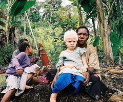 Albinistic girl papua new guinea