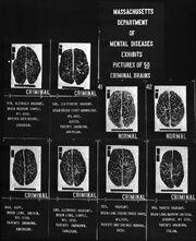 Criminal brains