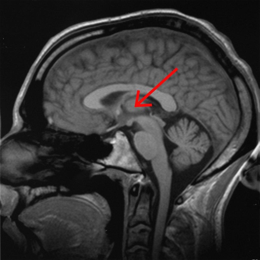 Thalamus | Psychology Wiki | FANDOM powered by Wikia