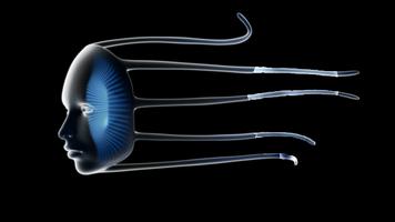 Jellyfishsolver