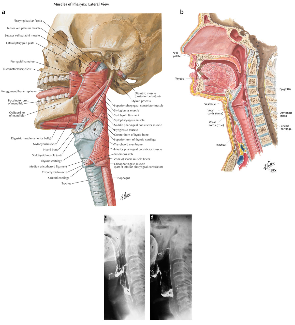 Pharyngeal muscles:Inferior constrictor &components ...