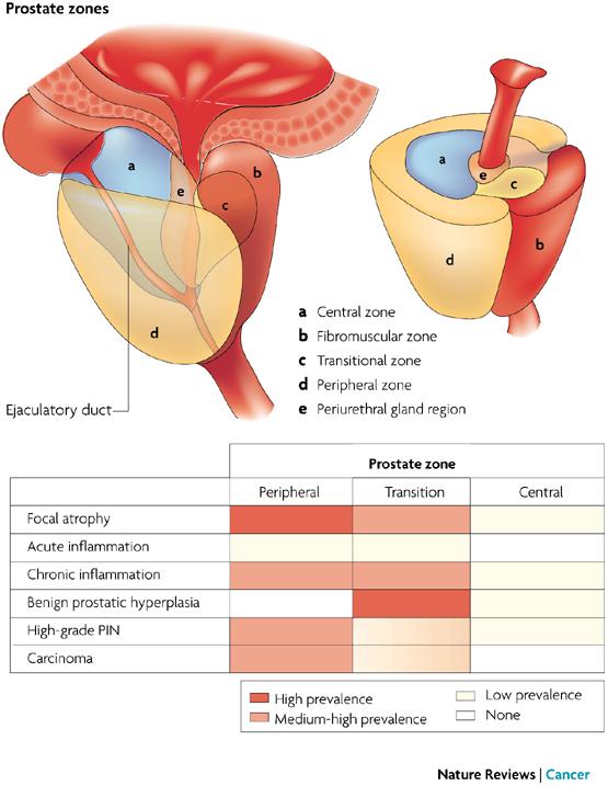 Visceraprostate Ranzcrpart1 Wiki Fandom Powered By Wikia