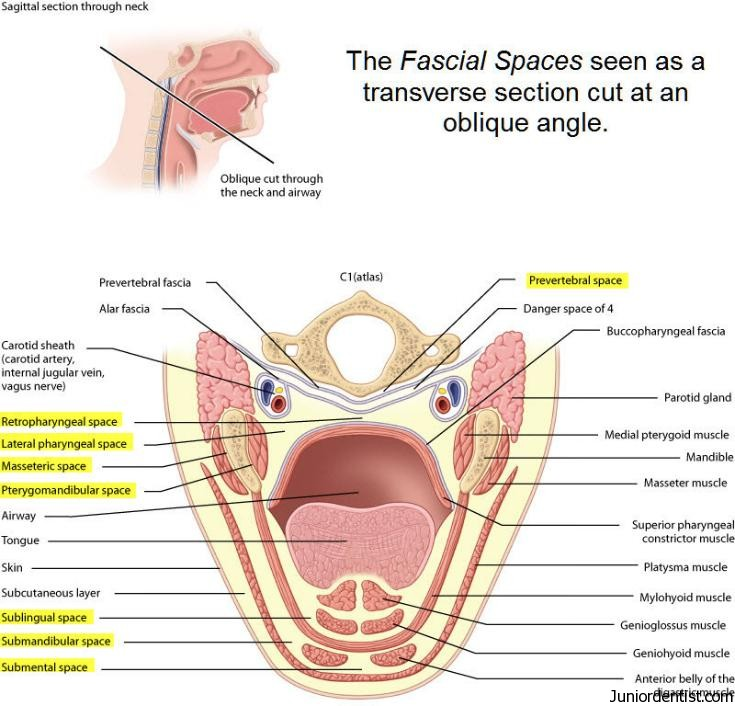 Image - The-Fascial-Spaces-of-Head-and-Neck-Region.jpg | RANZCRPart1 ...
