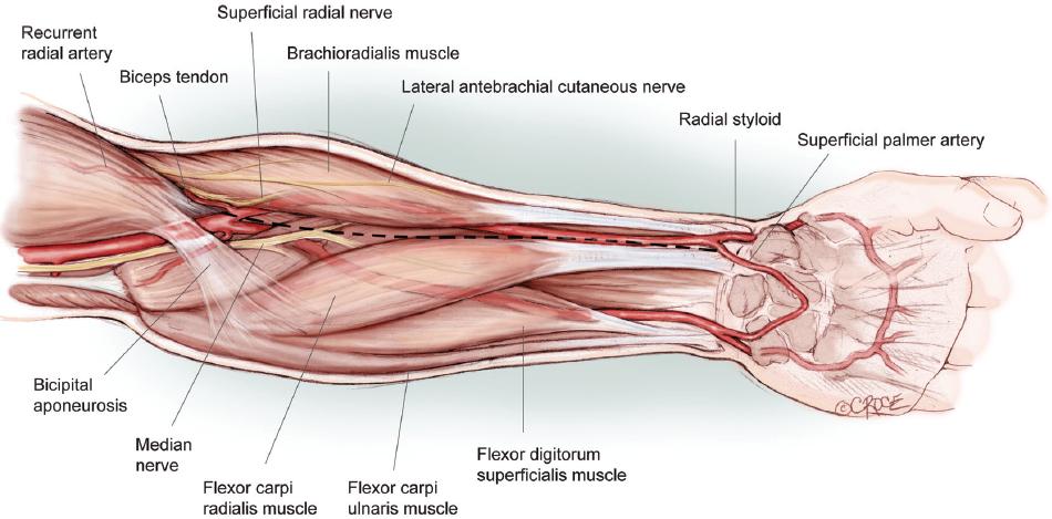 Arterial Structureradial Ulnarradial Ranzcrpart1 Wiki Fandom