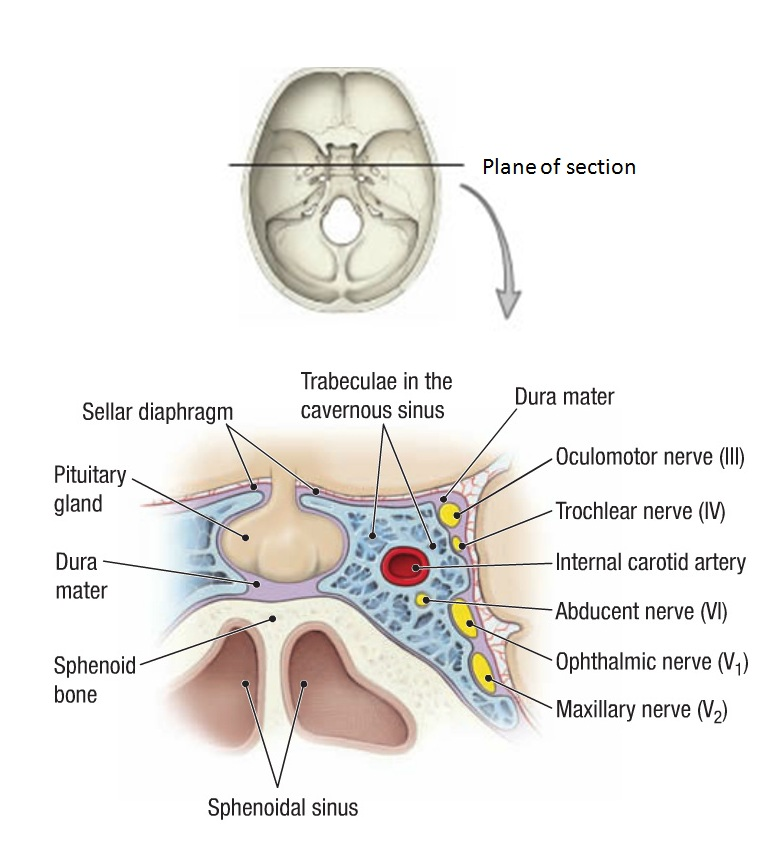 Pituitary & related structures:Diaphragma sellae | RANZCRPart1 Wiki ...