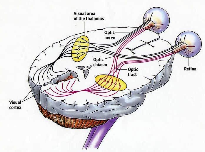 The orbit: Optic nerve complex:Optic nerve | RANZCRPart1 Wiki ...