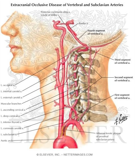 Spine & Back:Arteries:Vertebral artery | RANZCRPart1 Wiki | FANDOM ...