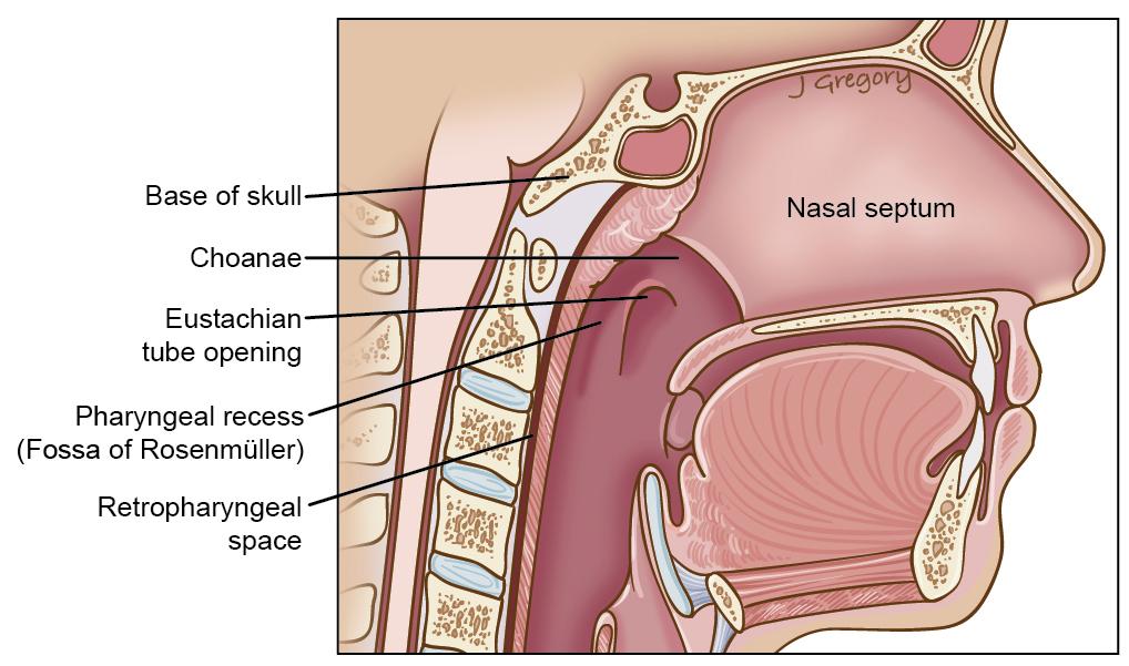 Nasopharynx:Rosenmüller fossa | RANZCRPart1 Wiki | FANDOM powered by ...